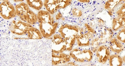 Immunohistochemistry (Formalin/PFA-fixed paraffin-embedded sections) - Anti-AKR1A1 antibody (ab11802)