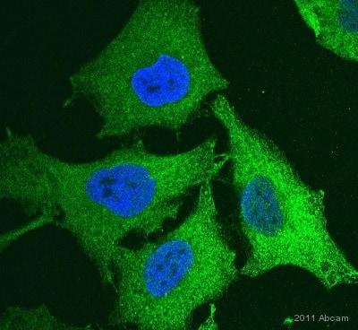 Immunocytochemistry/ Immunofluorescence - Anti-DCTN1/p150-glued antibody (ab11806)