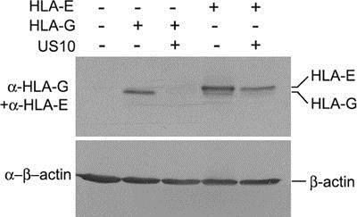 Western blot - Anti-HLA E antibody [MEM-E/07] (ab11820)
