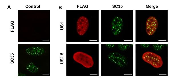Immunocytochemistry/ Immunofluorescence - Anti-SC35 antibody [SC-35] - Nuclear Speckle Marker (ab11826)