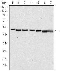 Western blot - Anti-p63 antibody [4E5] (ab110038)