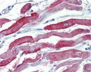 Immunohistochemistry (Formalin/PFA-fixed paraffin-embedded sections) - Anti-JP-2 antibody (ab110056)