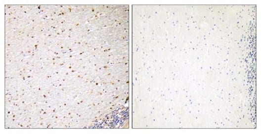 Immunohistochemistry (Formalin/PFA-fixed paraffin-embedded sections) - Anti-PAK5 antibody (ab110069)