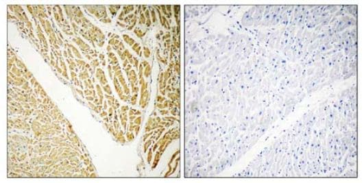 Immunohistochemistry (Formalin/PFA-fixed paraffin-embedded sections) - Anti-Calcium binding protein 7 antibody (ab110086)