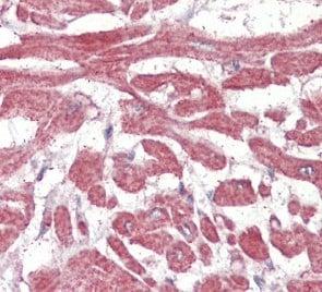 Immunohistochemistry (Formalin/PFA-fixed paraffin-embedded sections) - Anti-BLBP antibody (ab110099)