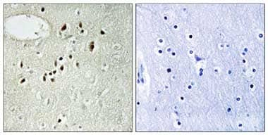 Immunohistochemistry (Formalin/PFA-fixed paraffin-embedded sections) - Anti-EMX2 antibody (ab110112)