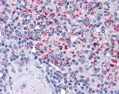 Immunohistochemistry (Formalin/PFA-fixed paraffin-embedded sections) - Anti-Integrin beta 3 antibody [VI-PL2] (ab110131)