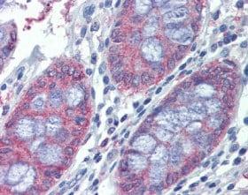 Immunohistochemistry (Formalin/PFA-fixed paraffin-embedded sections) - Anti-METTL7B antibody (ab110134)