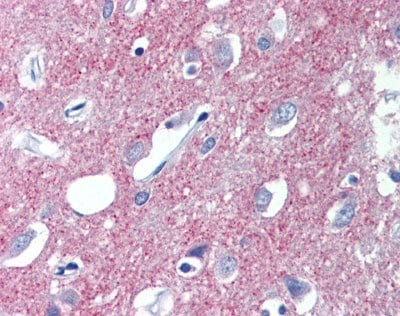 Immunohistochemistry (Formalin/PFA-fixed paraffin-embedded sections) - Anti-VGluT1 antibody (ab110139)