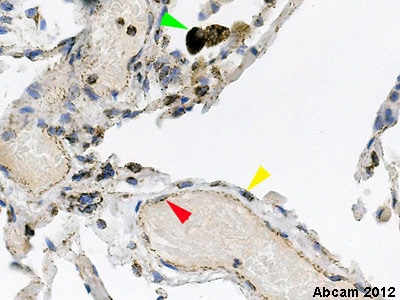 Immunohistochemistry (Formalin/PFA-fixed paraffin-embedded sections) - Anti-MTCO2 antibody [12C4F12] (ab110258)