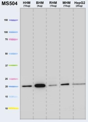 Western blot - Anti-ATP5H antibody [7F9BG1] (ab110275)