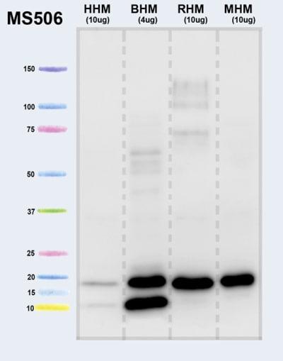 Western blot - Anti-ATPase Inhibitory Factor 1/IF1 antibody [5E2D7] (ab110277)