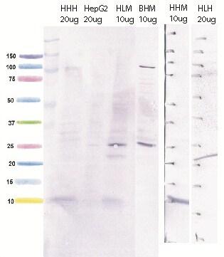 Western blot - Anti-ATP5J antibody [10C6AC9] (ab110279)