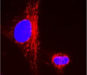 Immunocytochemistry - Anti-CPS1 antibody [2E4AE11] (ab110303)