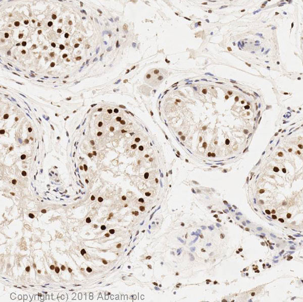 Immunohistochemistry (Formalin/PFA-fixed paraffin-embedded sections) - Anti-SIRT1 antibody [19A7AB4] (ab110304)
