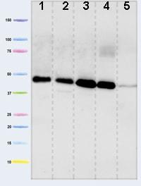Western blot - Anti-Pyruvate Dehydrogenase E1-alpha subunit antibody [9H9AF5] (ab110330)