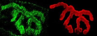 Immunohistochemistry (Formalin/PFA-fixed paraffin-embedded sections) - Anti-Piccolo antibody (ab110427)