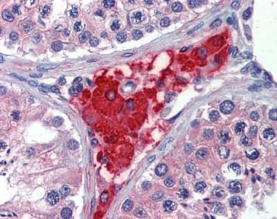 Immunohistochemistry (Formalin/PFA-fixed paraffin-embedded sections) - Anti-PRTFDC1 antibody (ab110451)