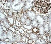 Immunohistochemistry (Formalin/PFA-fixed paraffin-embedded sections) - Anti-CD34 antibody [EPR2999] (ab110643)