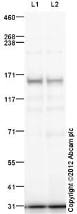 Western blot - Anti-Nephrocystin 4 antibody (ab110670)