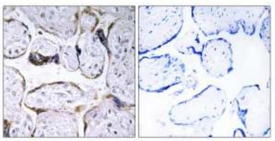 Immunohistochemistry (Formalin/PFA-fixed paraffin-embedded sections) - Anti-Elongation of very long chain fatty acids protein 3 antibody (ab110872)