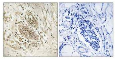 Immunohistochemistry (Formalin/PFA-fixed paraffin-embedded sections) - Anti-POLE antibody (ab110876)