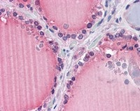 Immunohistochemistry (Formalin/PFA-fixed paraffin-embedded sections) - Anti-Frizzled 9 antibody (ab110886)