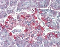 Immunohistochemistry (Formalin/PFA-fixed paraffin-embedded sections) - Anti-TRPM2 antibody (ab110895)