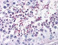 Immunohistochemistry (Formalin/PFA-fixed paraffin-embedded sections) - Anti-DUSP14 antibody (ab110938)