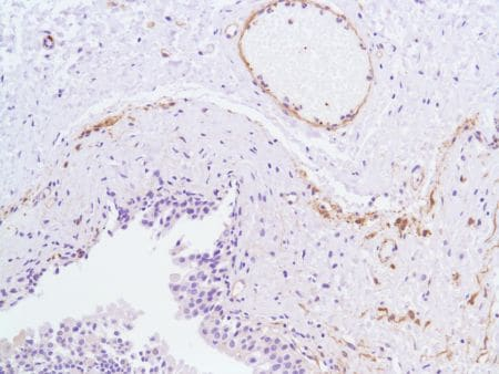 Immunohistochemistry (Formalin/PFA-fixed paraffin-embedded sections) - Anti-Vinculin antibody [SP117] - C-terminal (ab111004)