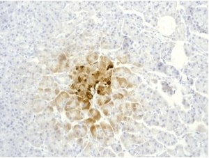 Immunohistochemistry (Formalin/PFA-fixed paraffin-embedded sections) - Anti-Somatostatin 28 antibody [EPR3360(2)] (ab111050)