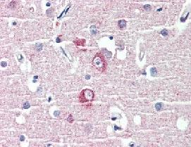 Immunohistochemistry (Formalin/PFA-fixed paraffin-embedded sections) - Anti-DLGAP1 antibody (ab111058)