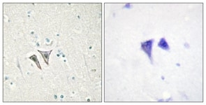 Immunohistochemistry (Formalin/PFA-fixed paraffin-embedded sections) - Anti-Activin A Receptor Type IC antibody (ab111121)