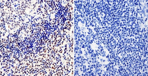 Immunohistochemistry (Formalin/PFA-fixed paraffin-embedded sections) - Anti-RPA32/RPA2 antibody [MA34] (ab111161)