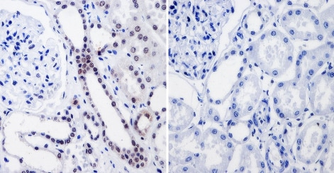 Immunohistochemistry (Formalin/PFA-fixed paraffin-embedded sections) - Anti-RPA32/RPA2 antibody [MA34] (ab111161)