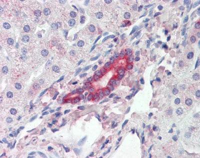 Immunohistochemistry (Formalin/PFA-fixed paraffin-embedded sections) - Anti-ROR1 antibody (ab111174)