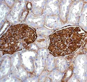 Immunohistochemistry (Formalin/PFA-fixed paraffin-embedded sections) - Anti-CD239/BCAM antibody [EPR4164] (ab111181)