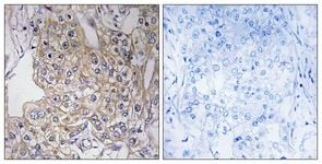 Immunohistochemistry (Formalin/PFA-fixed paraffin-embedded sections) - Anti-TN-X antibody (ab111270)
