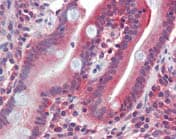 Immunohistochemistry (Formalin/PFA-fixed paraffin-embedded sections) - Anti-GLUT5 antibody (ab111299)