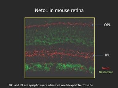 Immunohistochemistry (Formalin/PFA-fixed paraffin-embedded sections) - Anti-NETO1 antibody (ab111374)