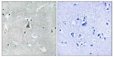 Immunohistochemistry (Formalin/PFA-fixed paraffin-embedded sections) - Anti-Bax (phospho S184) antibody (ab111391)