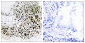 Immunohistochemistry (Formalin/PFA-fixed paraffin-embedded sections) - Anti-TRPS1 antibody (ab111439)