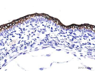 Immunohistochemistry (Formalin/PFA-fixed paraffin-embedded sections) - Anti-Cytokeratin 10 antibody (ab111447)