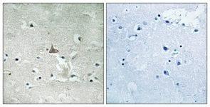 Immunohistochemistry (Formalin/PFA-fixed paraffin-embedded sections) - Anti-TrkB (phospho Y706 + Y707) antibody (ab111545)