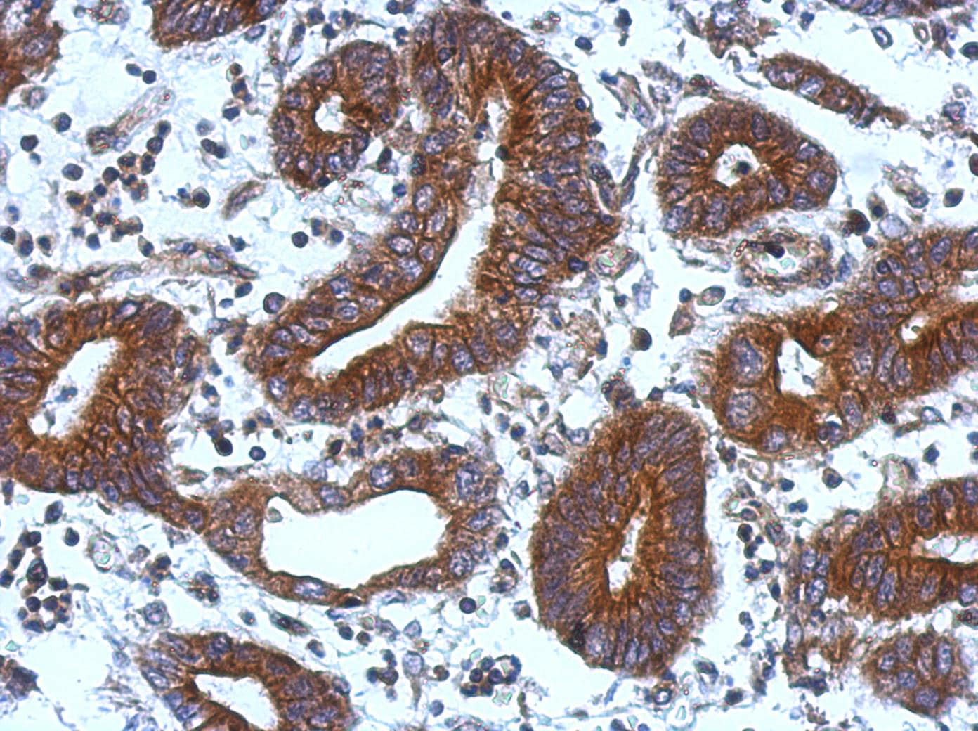 Immunohistochemistry (Formalin/PFA-fixed paraffin-embedded sections) - Anti-TIE1 antibody (ab111547)