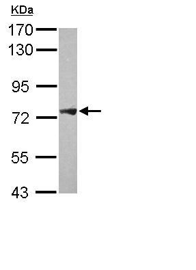 Western blot - Anti-PLA2G4F antibody (ab111551)