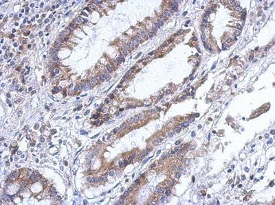 Immunohistochemistry (Formalin/PFA-fixed paraffin-embedded sections) - Anti-PLA2G4F antibody (ab111551)