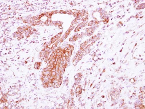 Immunohistochemistry (Formalin/PFA-fixed paraffin-embedded sections) - Anti-LRRC4C antibody (ab111572)