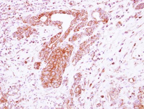 Immunohistochemistry (Formalin/PFA-fixed paraffin-embedded sections) - Anti-LRRC4C antibody (ab111572)