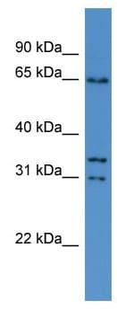 Western blot - Anti-CPNE5 antibody (ab111583)